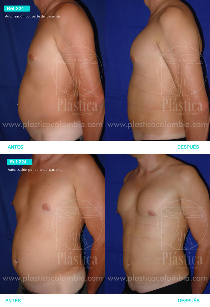 Foto Liposucción Barriga Hombre