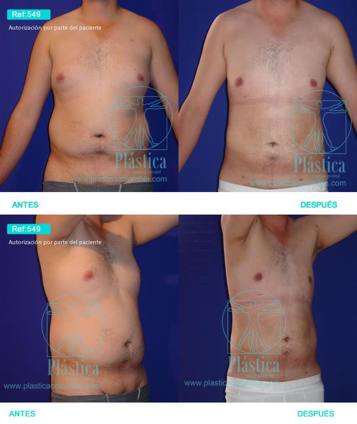 Foto Liposucción barriga y pectorales