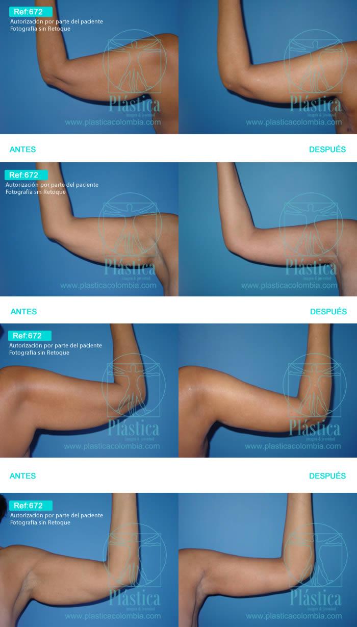 Foto Liposucción brazos 672