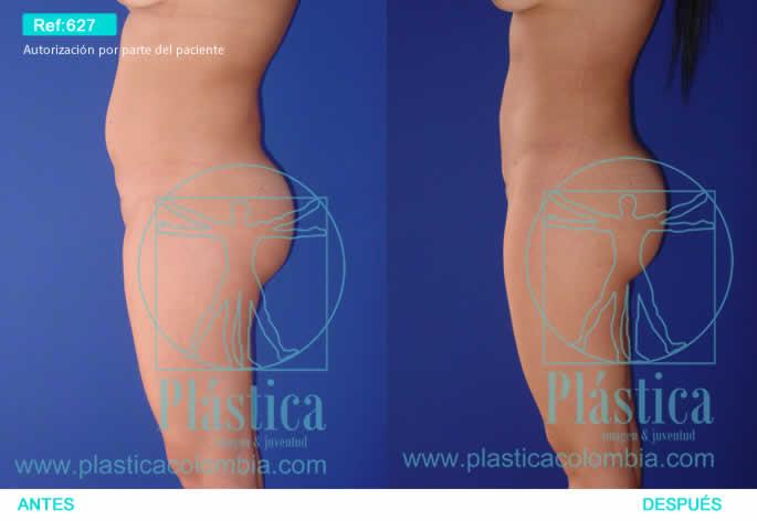 Foto Reducción cintura y abdomen 627