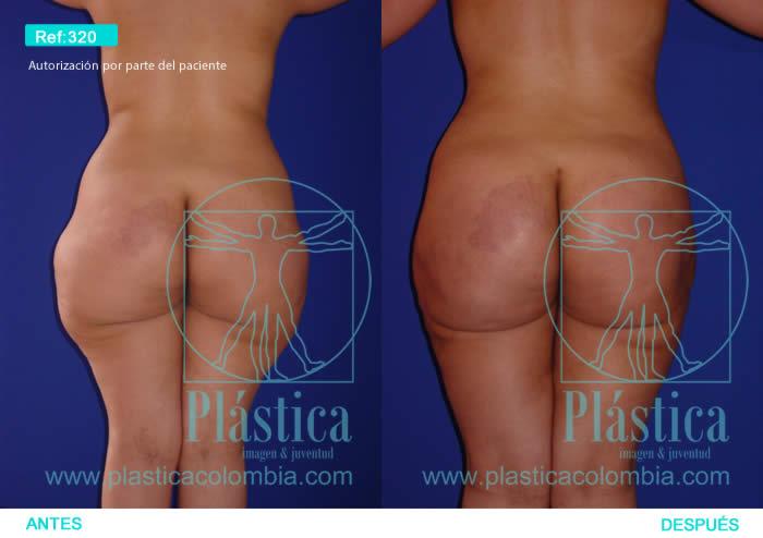 Fotografía Reducción Cintura y liposucción espalda