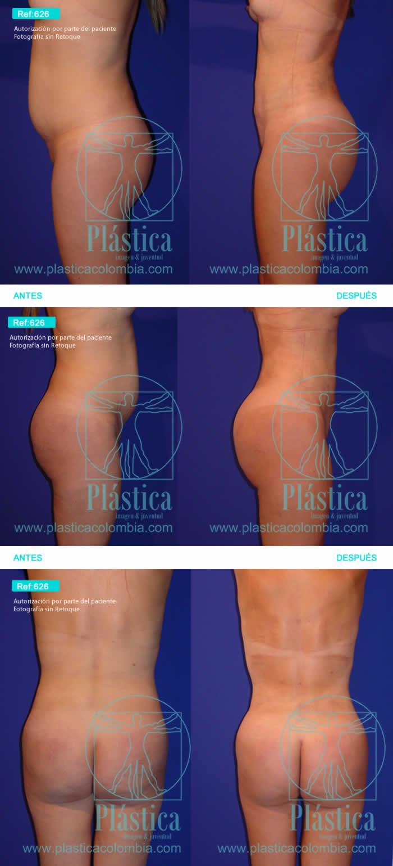 Liposucción con tallado gluteo y reducción cintura
