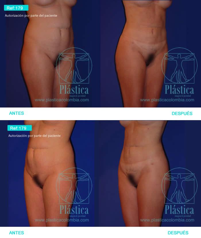 Foto Liposucción con cicatriz abdomen 179