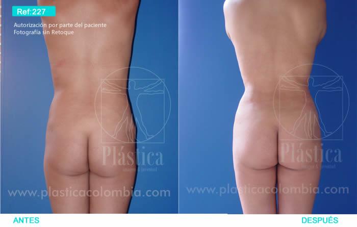Fotografía liposucción espalda