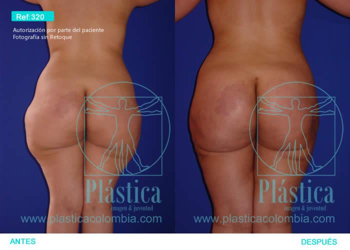 Fotografía liposucción espalda y cadera