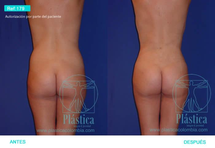 Foto Liposuccion espalda y cintura