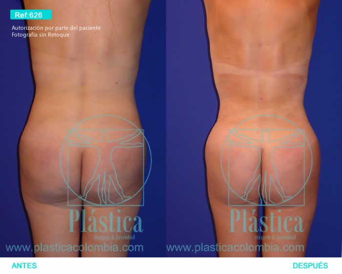 Fotografía liposucción espalda y cintura 626