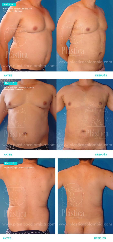 Corrección Ginecomastia y Liposucción