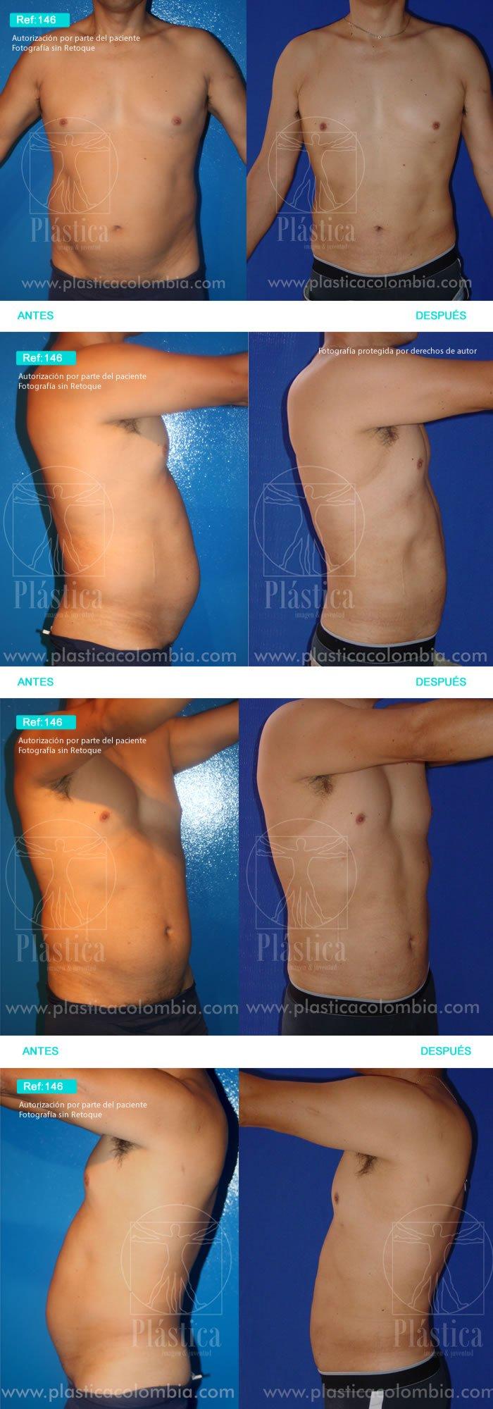 Cirugía liposucción Abdomen y Espalda