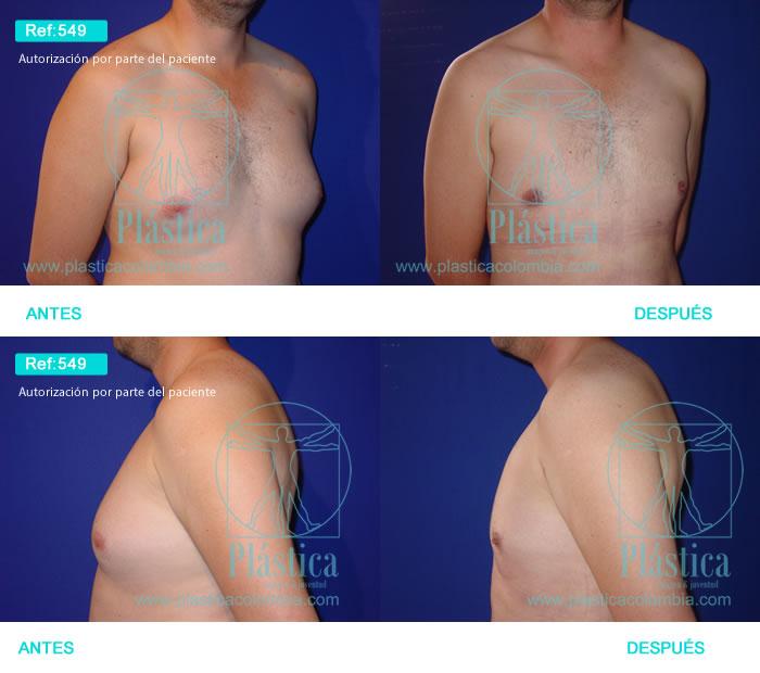 Foto liposucción pectorales 549