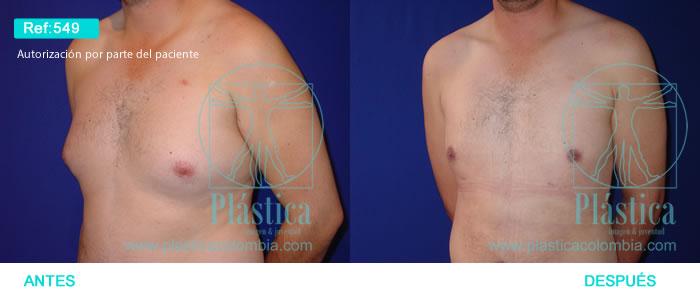 Foto liposucción pecho 549