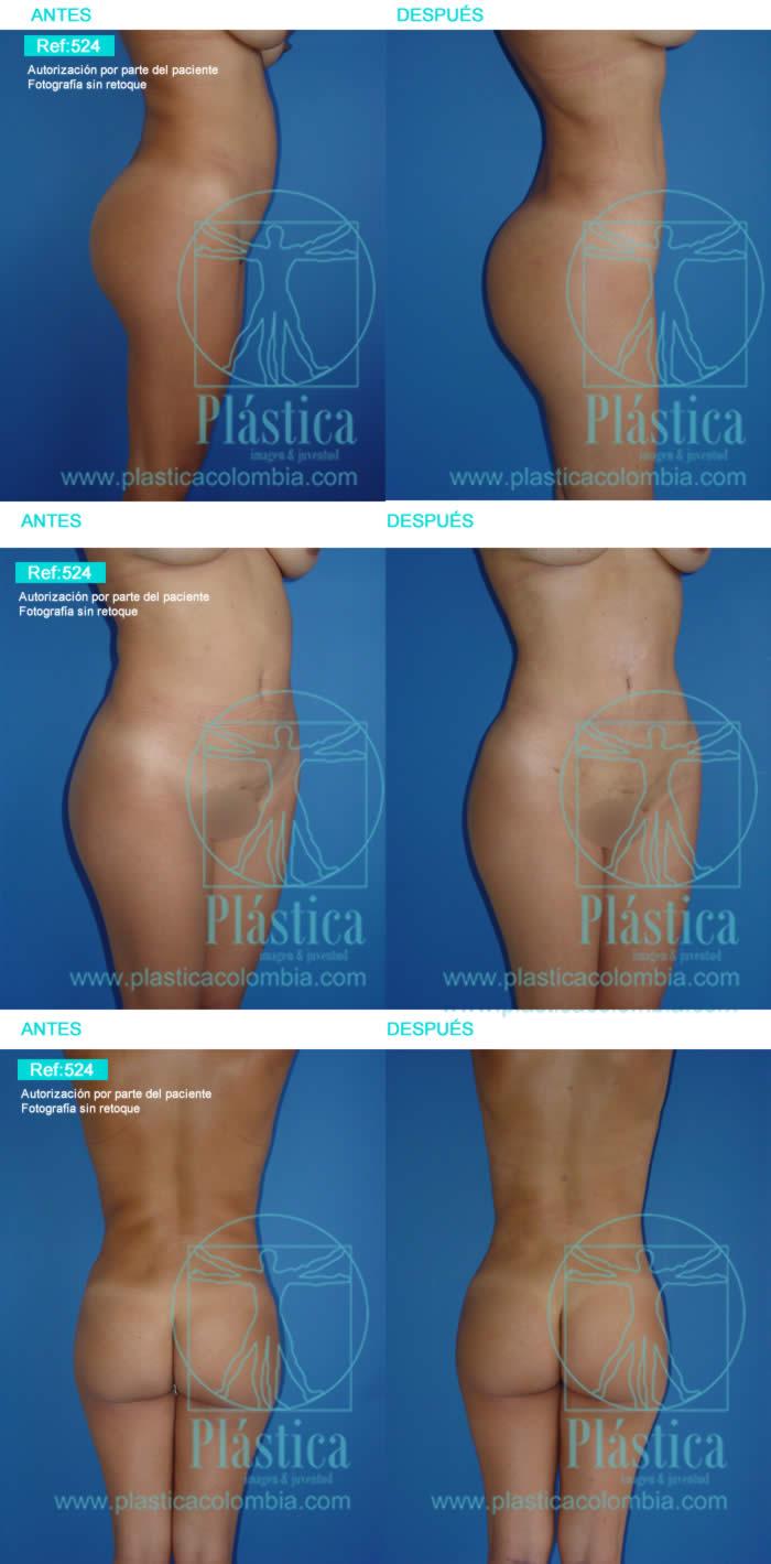 Fotografía Cirugía Gluteos 524