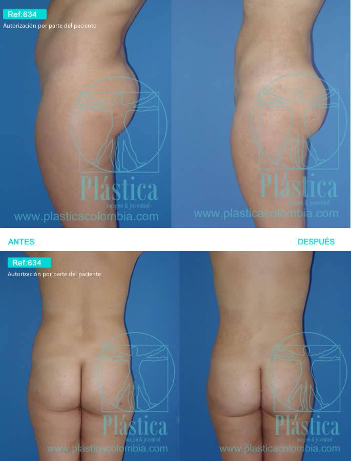 Liposucción abdomen y espalda con tallado gluteo