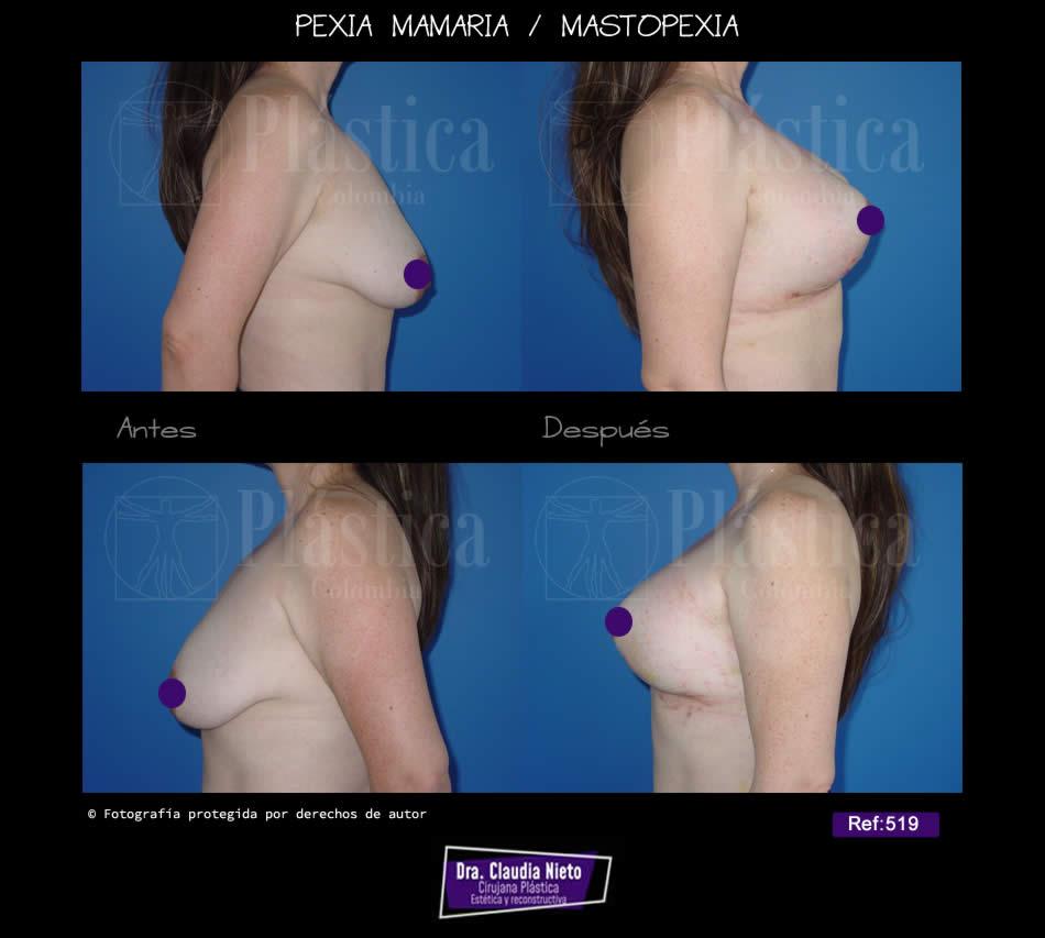 Pexia Mamaria con Prótesis ref 519