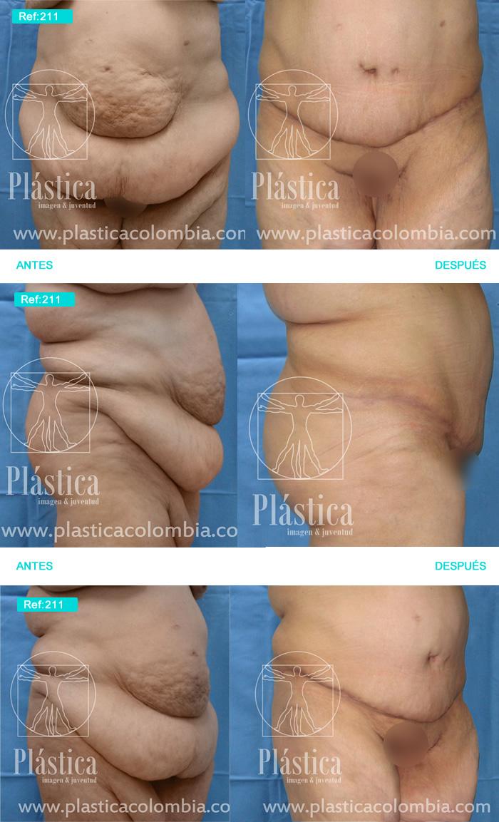 Casso Cirugía Postbariátrica y Abdominoplastia