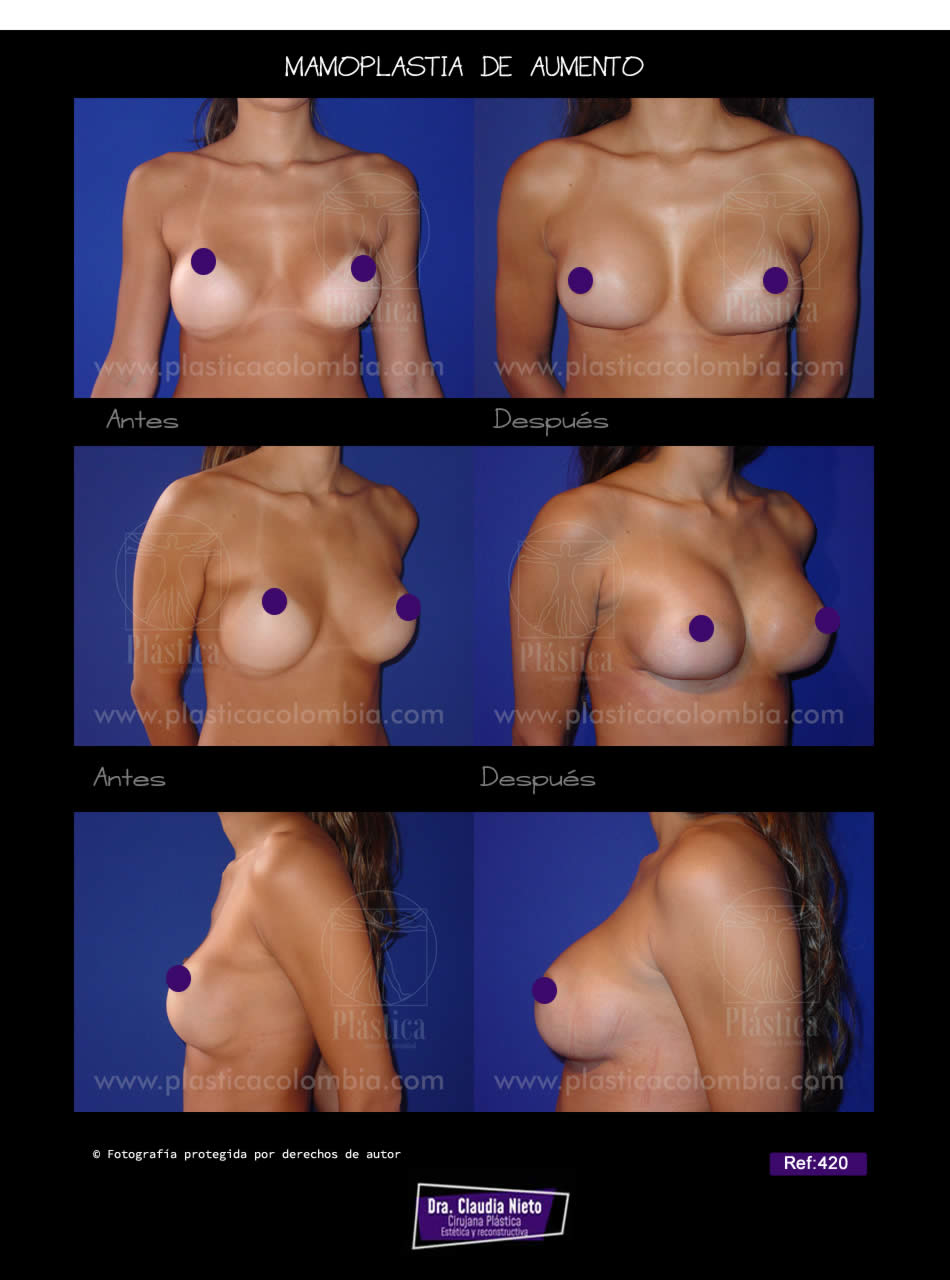 Reacomodacion de protesis mamarias