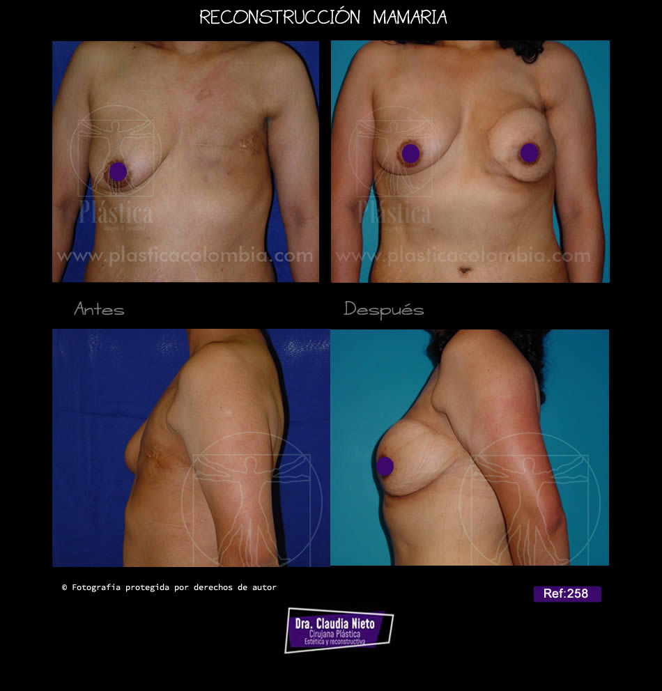 Mamoplastia Reconstructiva