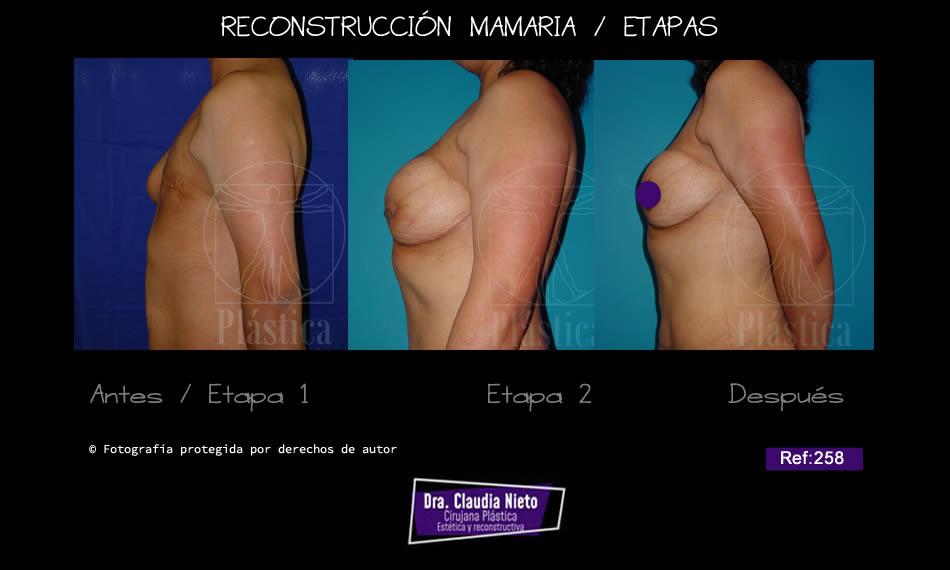Reconstrucción seno