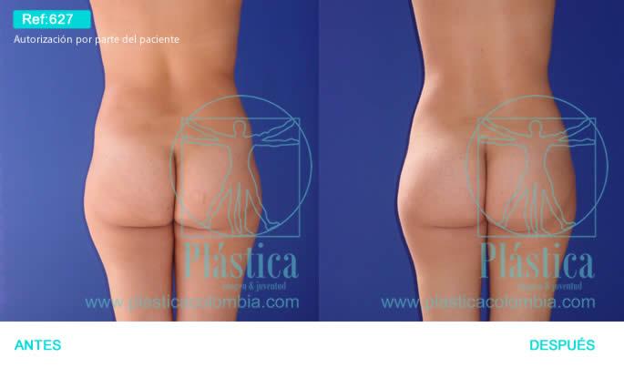Fotografía Reducción cintura, espalda abdomen