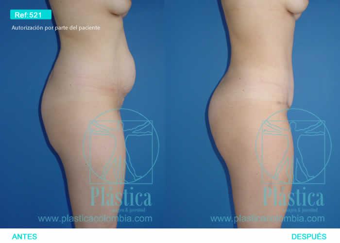 Foto liposucción cintura y abdomen 521