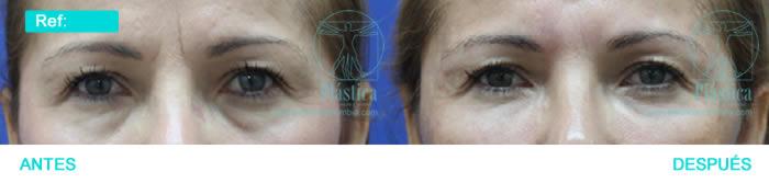 Foto arrugas alrededor ojos con ojeras