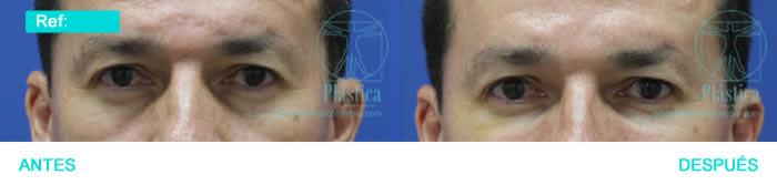 Foto arrugas y ojeras masculinas