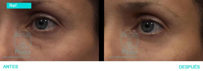 Foto Ojeras y arrugas alrededor ojos