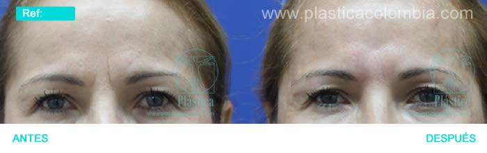 Foto arrugas ceño fruncido
