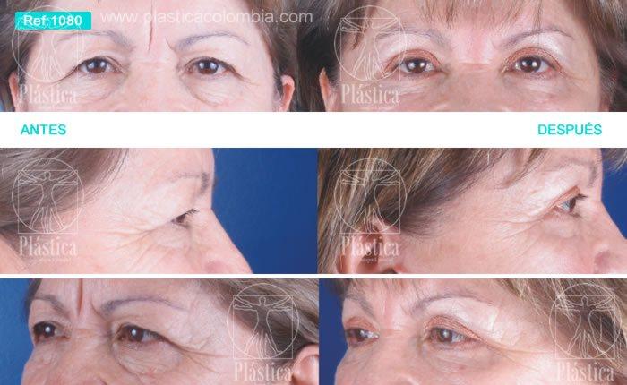 La máscara con la vitamina y y vit e para la persona