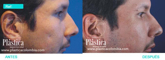 Caso Implante Pectoral