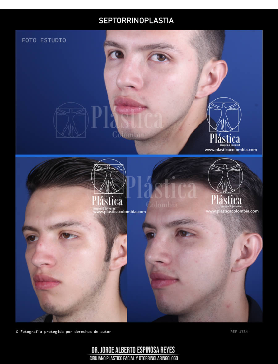 Foto cirugia de nariz
