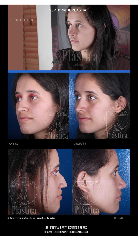 Fotografía Cirugía Nariz 1181