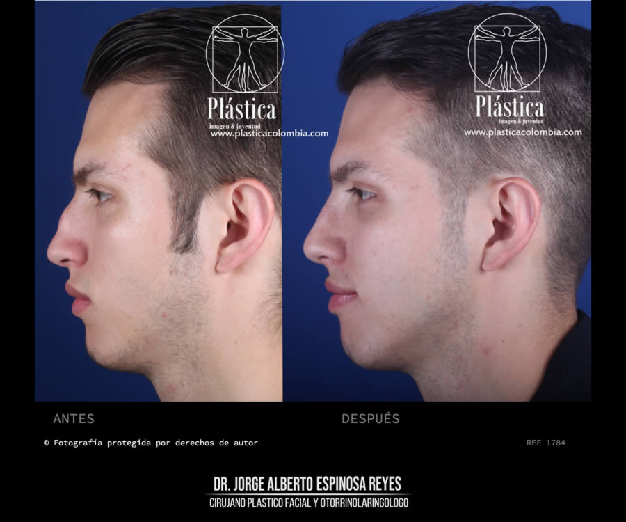 Foto cirugia nariz