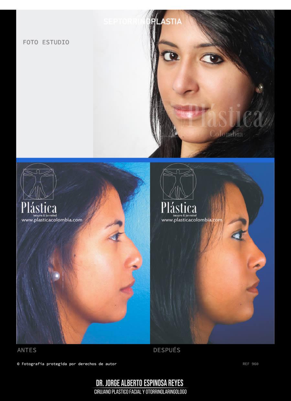 Fotografía Cirugía de Nariz 555