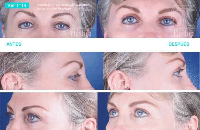 Blefaroplastia Superior con Lifting Facial