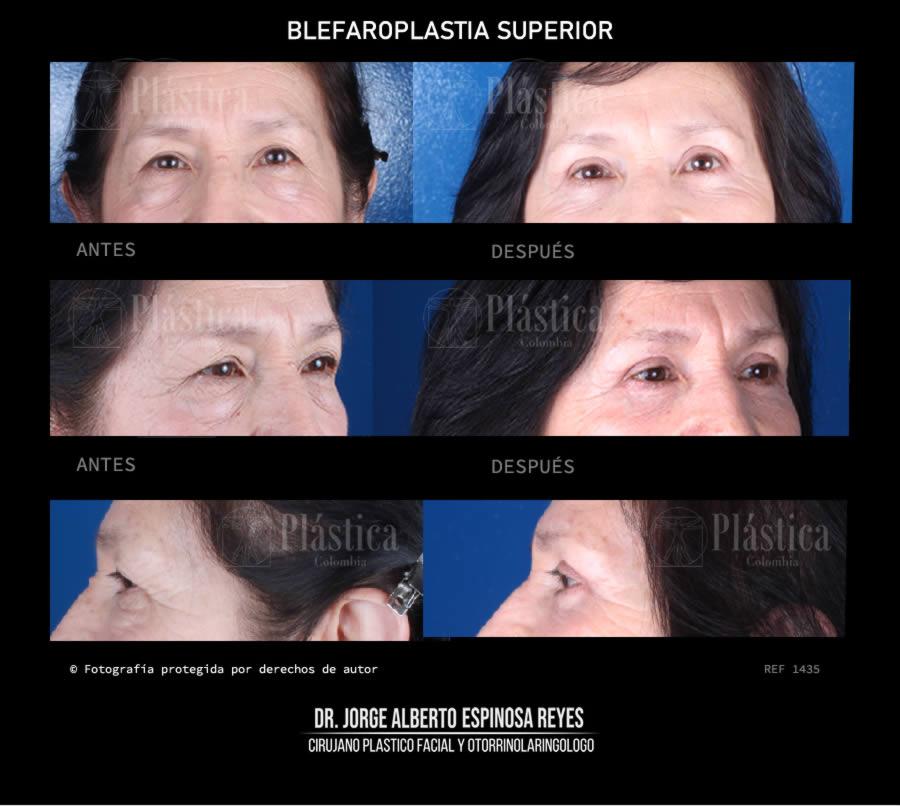 Foto 1435 Blefaroplastia Párapados Superiores