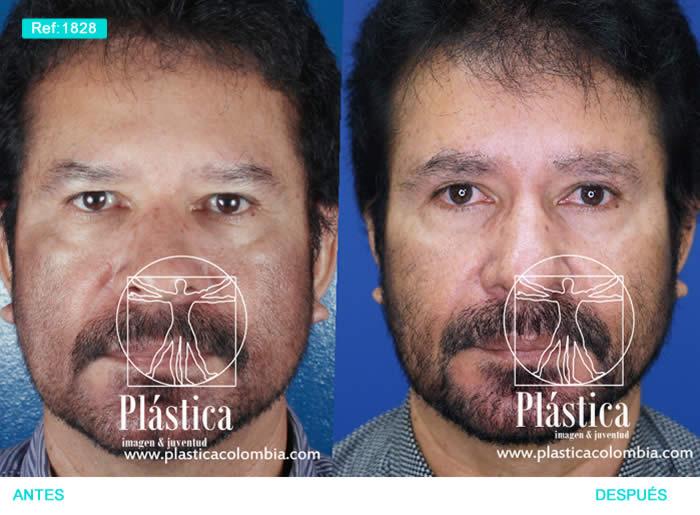 Foto Frontoplastia con blefaroplastia