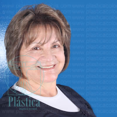 Testimonio paciente blefaroplastia