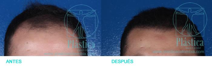 Caso Injerto pelo alopecia
