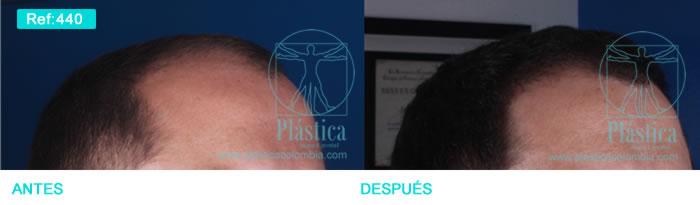 Injerto pelo antes y después