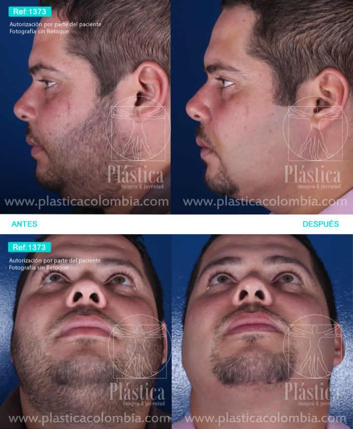 Foto 1373 Lifting Facial