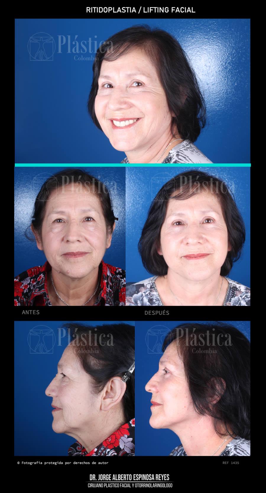 Foto 1435 Lifting Facial