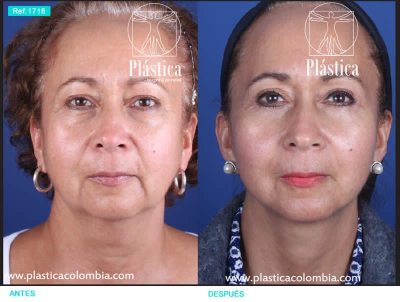 Foto lifting facial 1718