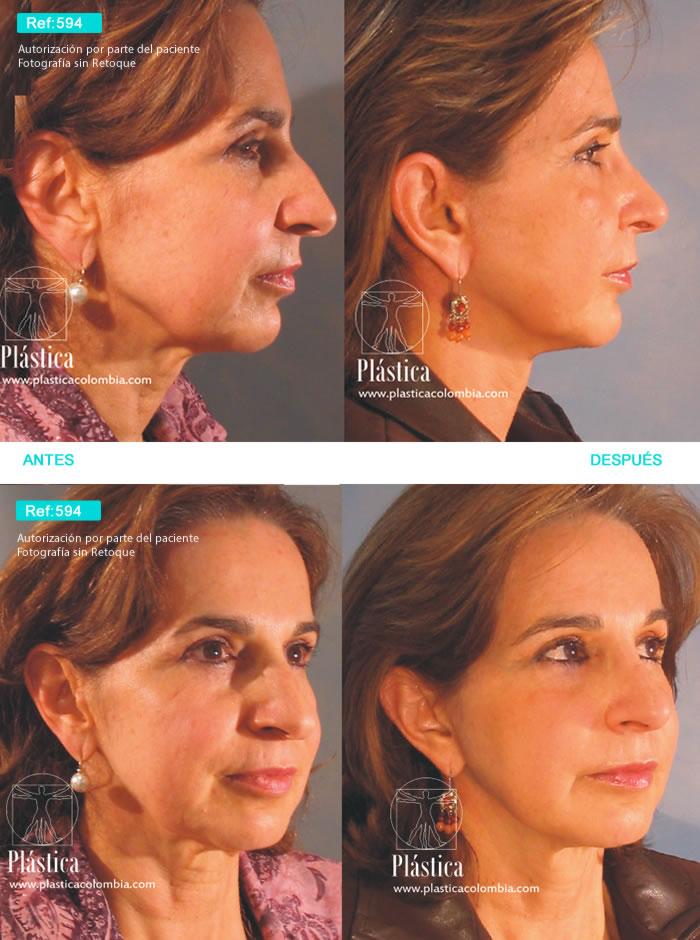 Rejuvenecimiento Facial 594