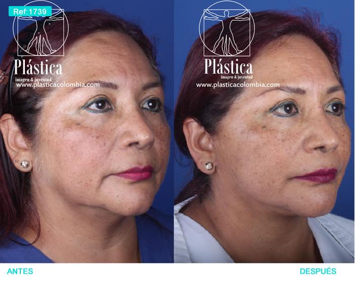 foto Estiramiento facial liposucción papada