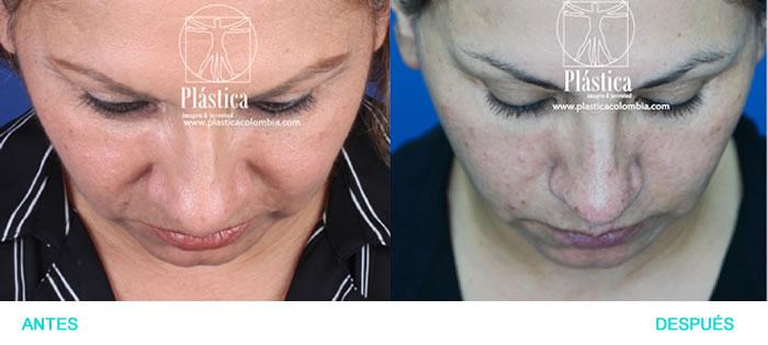 foto lifting facial y liposucción papada