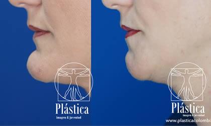 Foto Reducción mandíbula