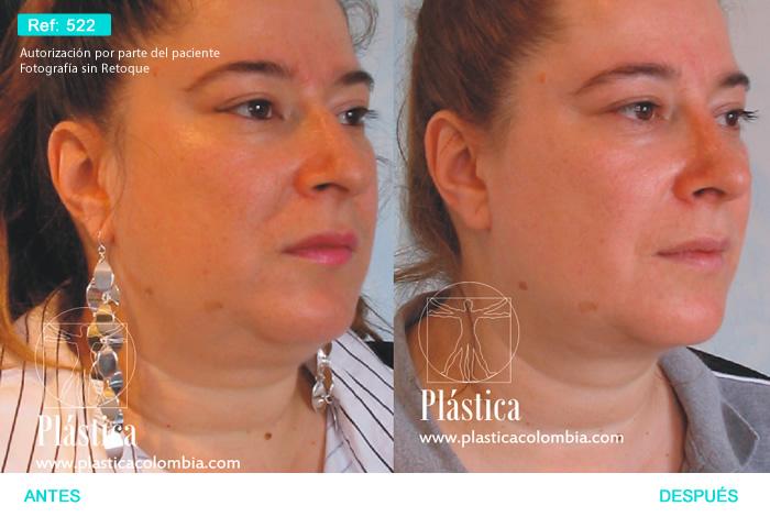 Mentoplastia y Bichectomia