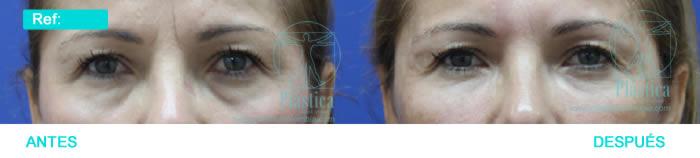 Fotografía Tratamiento ojeras