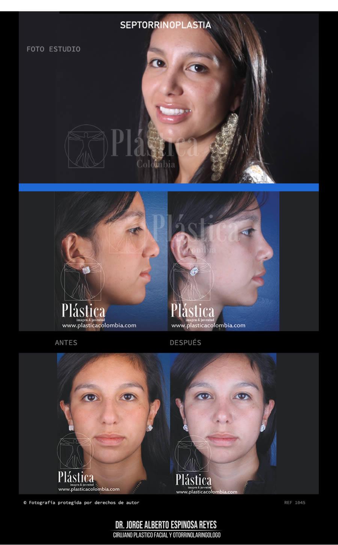 Fotografía Cirugía Nariz 1045